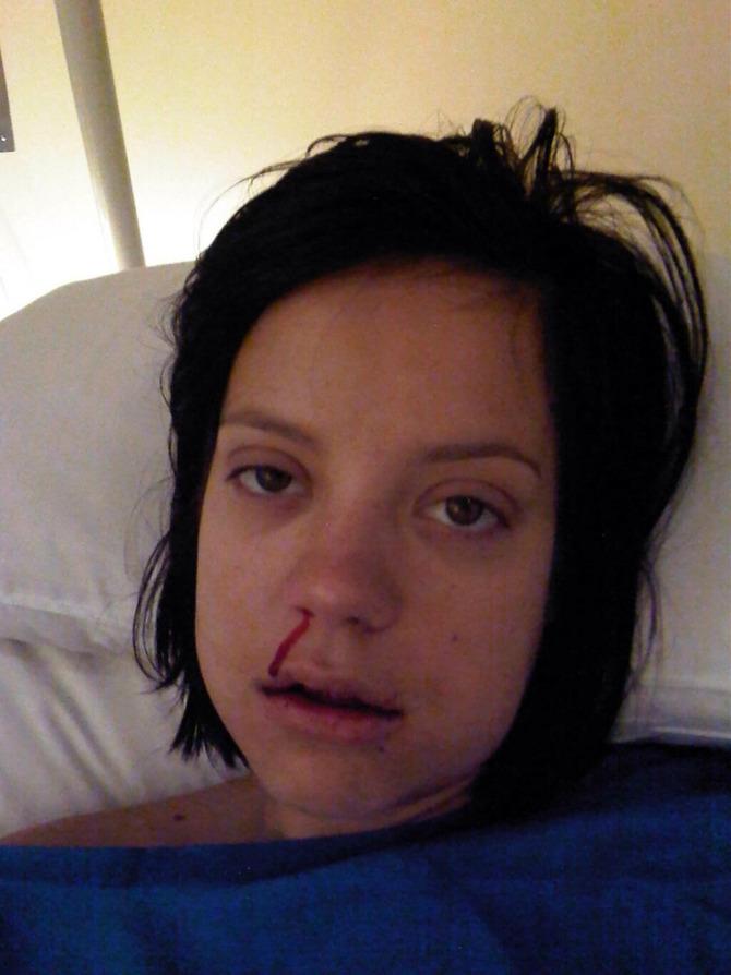 Lily Allen dal dentista