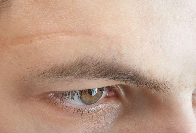 12 Cicatrici