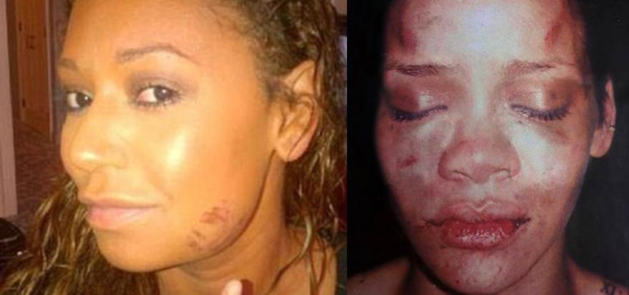 Mel B e Rihanna: storie di successo e violenza