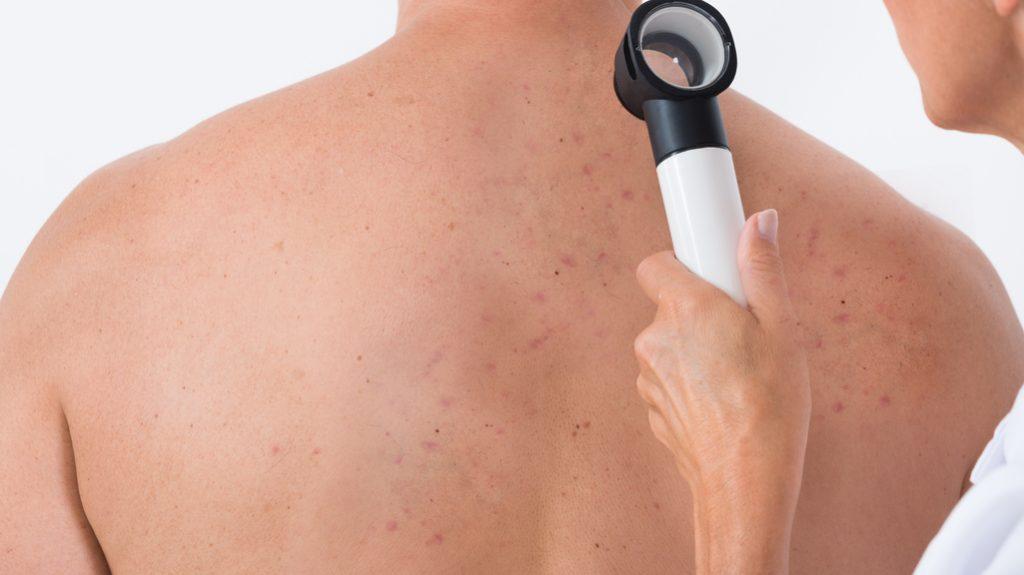 Back acne: come curare i foruncoli sulla schiena