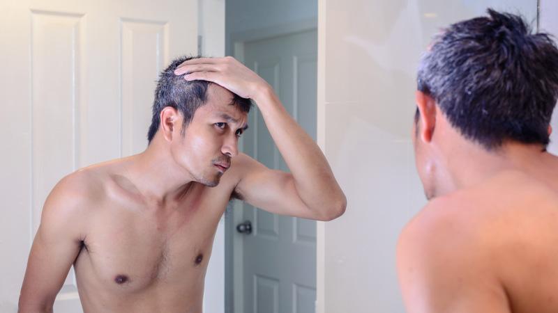 Capelli grigi, la causa potrebbe essere lo stress