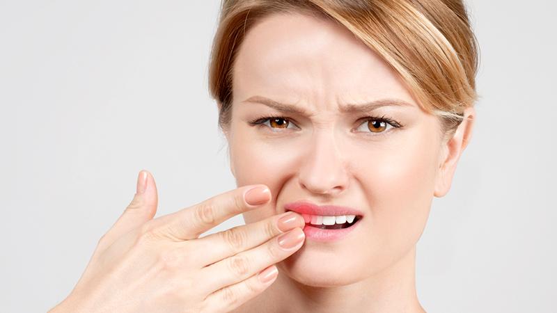 Salute dentale, i nemici che dovresti conoscere