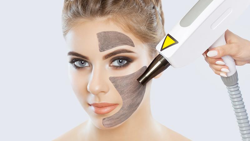 skincare routine primaverile, peeling